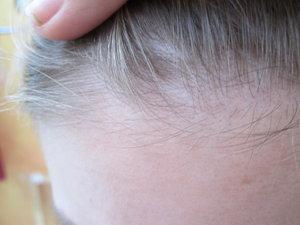 Les moyens nationaux de la sortie des cheveux gras et fins