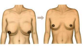 - Vous avez déjà pensé à la réduction mammaire ? – Euuuuuuh…